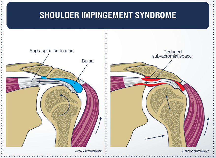 Shoulder Impingement – Irritable Shoulder Pain and Physiotherapy ...